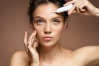 acne-treatment-on-skin.jpg